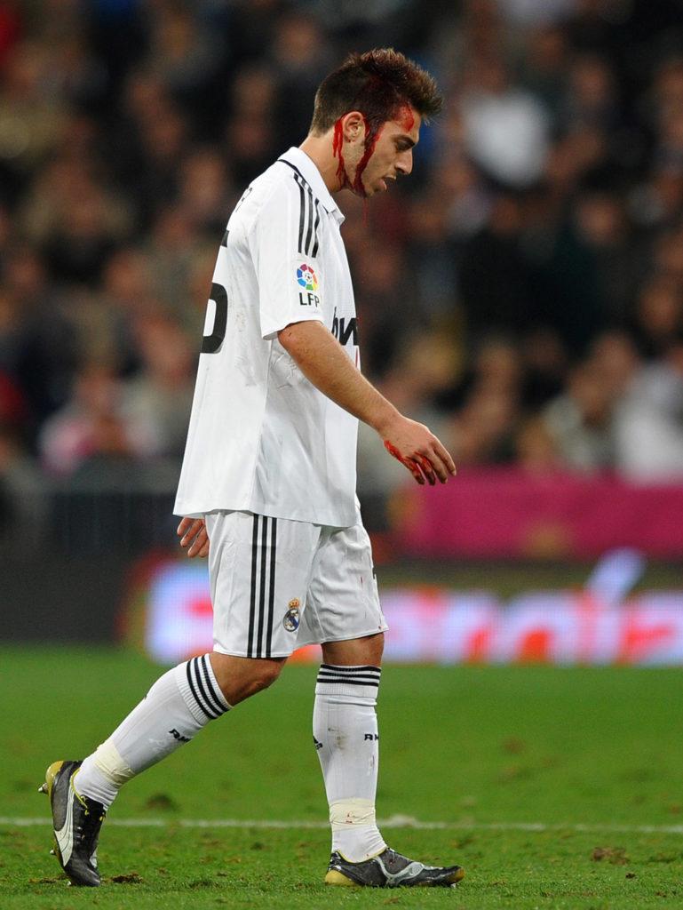 Nicht gut genug für Real Madrid. (Photo by Jasper Juinen/Getty Images)